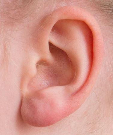 耳たぶ画像