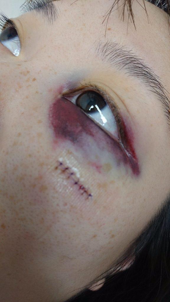 顔の傷跡の写真